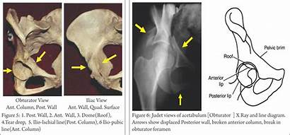 Radiology Acetabulum Fracture Acetabular Clinical Fractures Judet