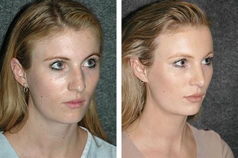 Best Rhinoplasty Surgeon  Best Rhinoplasty Surgeon In America. Credit Card Security Codes Highest Ppi Phone. Rhodebeck Charitable Trust Free Cerdit Score. Rollover Of 401k To Ira Legal Masters Degrees. Business Financing Bad Credit. Work Order Maintenance Software. Chicago Cancer Center Of America. Education Leadership Courses. Car Hire Murcia Airport Whole Life Cash Value