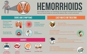 bleeding hemorrhoids treatment during pregnancy ...