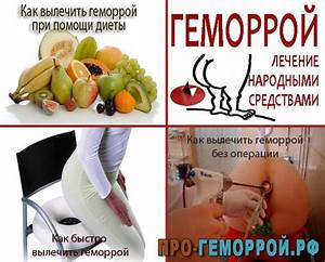 Как лечить внутренний геморрой в домашних условиях быстро у женщин
