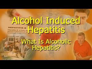 Alcohol Induced Hepatitis - What Is Alcoholic Hepatitis? - YouTube What I need to know about Hepatitis B