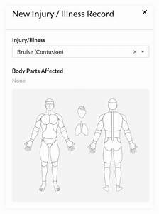 Incidents  Body Diagram Added To  U0026 39 Body Parts Affected