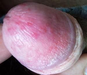 Мазь от папилломы на головке