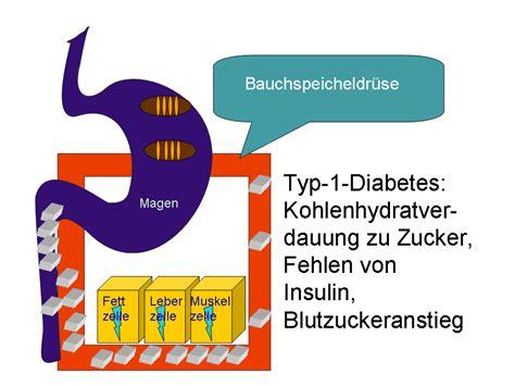 die ursachen von diabetes maple suyrup diet