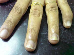 images  nail fungus  pinterest fungus