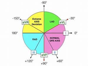 Left Axis Deviation Ecg Lad