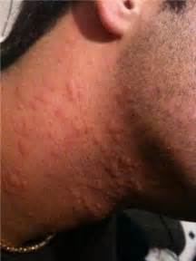These Hives Rash pictures will give you some examples of what hives ... Hives