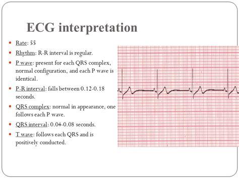 pr normal range cardiac arrhythmia ppt