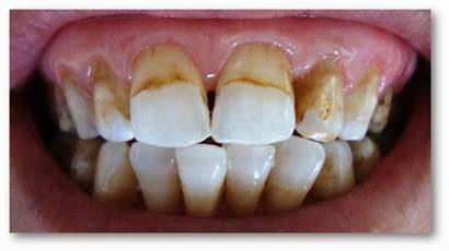 Microabrasion Teeth Fluorosis Dental Anterior Bleaching Permanent