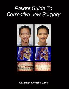 Details About Orthognathic Surgery  Patient Guide  U0026 Before