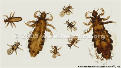 Images Of Lice Faqs Lousology 101
