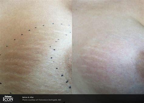 Palomar LUX 1540 Fraxel Laser Weston | Improves Skin
