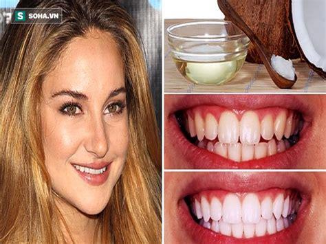 Trắng răng với baking soda