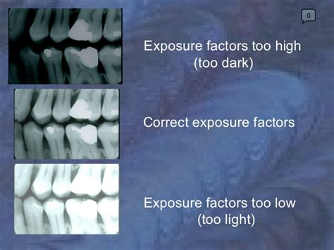 dental ray production too xray radiology exposure dark factors courses