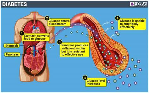 In Diabetes Mellitus Diabetes Mellitus Symptoms Treatment Type 1 Diabetes