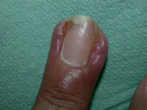 adverse reactions   nails paronychia secondary
