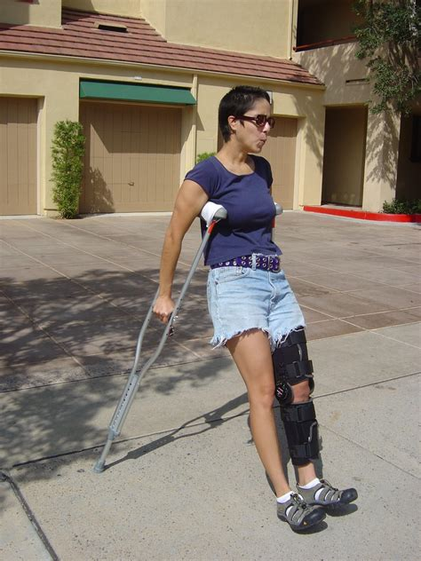 1 Leg Woman On Crutches Pictures To Pin On Pinterest