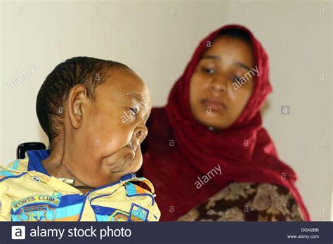 Progeria Stockfotos & Progeria Bilder Alamy