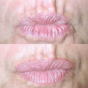 Relaxers for lips
