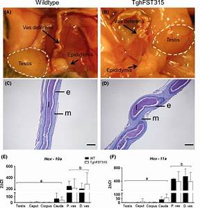 Tghfst315 Mice Displayed Coiling Of The Proximal Vas
