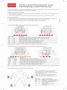 Ecg Lead Placement And Lead Reversal Guide