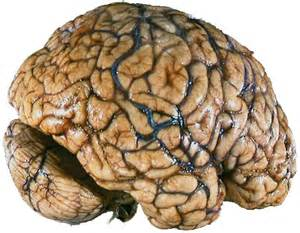 How Does Cocaine Affect the Brain? Stroke related to cocaine use