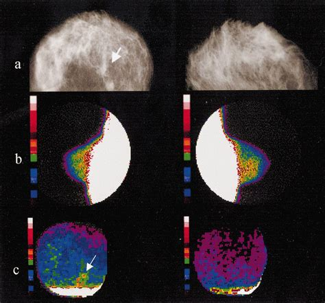 breast cancer suspicious cm opacity mammography ray sized less than publication area shows spot