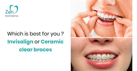 In choosing a dental insurance company, make sure that it is legitimate and that it offers the best available benefits. Which is best for you ? Invisalign or Ceramic clear braces - Zen Dental & Health care