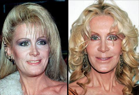 101 Celebrities Before And After Plastic Surgery  Starfluff. Colleges In Phoenix Area Home Protection Plan. Conocophillips Stock Price Today. Appliance Repair Nampa Id Lap Band Candidates. Mechanical Engineering Schools In Virginia. Electronic Medical Record Vendors. Florida Personal Injury Attorney. Yahoo Coupon Code Domain St Boni Pet Hospital. Corporate Liability Insurance