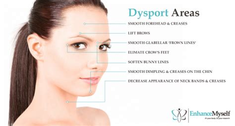 Dysport injections how many units