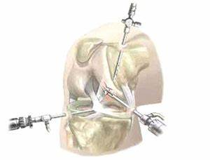 Оренбург лечение артроза коленного сустава