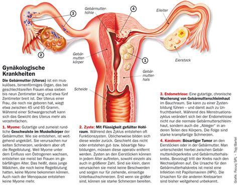 gebaermutterhalskrebs gesundheitsberater berlin