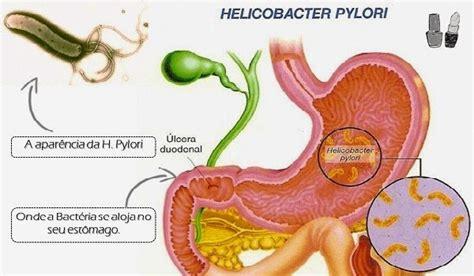 bactérie helicobacter pylori symptomes gastritis diseases pbl