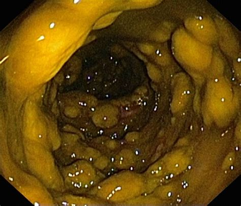 Pseudomembranous Colitis Symptoms, Causes, Diagnosis and