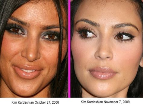 kim kardashian before surgery kim kardashian before and