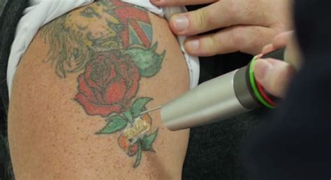 revlite laser tattoo removal andrea catton laser clinic