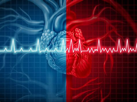 The 4 most common triggers of Afib - Easy Health Options®