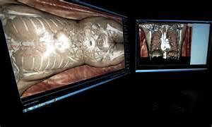 Autopsy Paul Walker