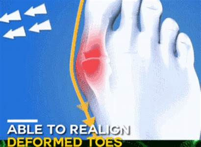 Sandals Comfy Toe Bunion Posture Orthopedic Correction