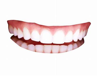 Teeth Smile Transparent Pluspng Clipart Mouth Background