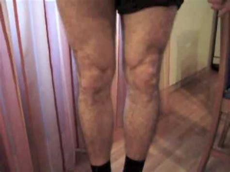 Vastus medialis obliquus, the key to the knee - YouTube