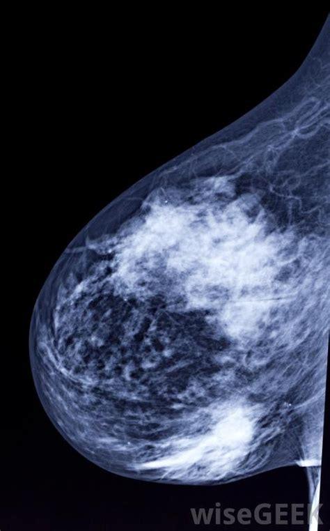 abnormal mammogram  pictures