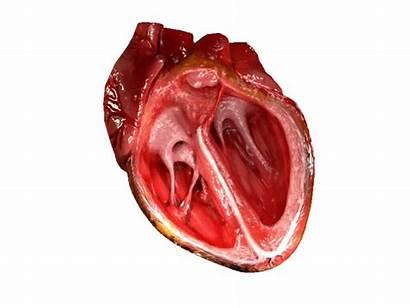 Surgery Cardiology Cardiothoracic Medical