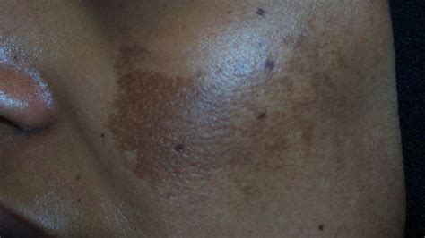 discolored skin patches pictures   treatments