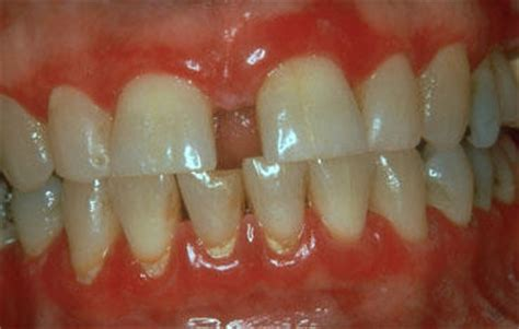 ii feel   gums    tooth