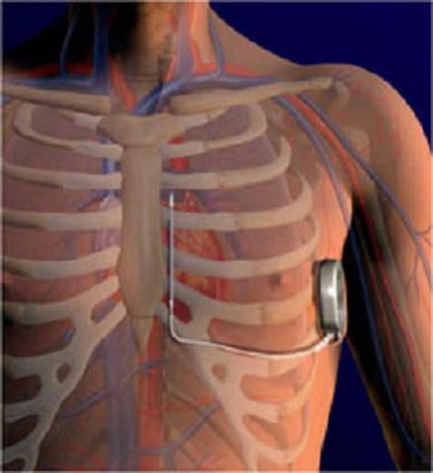 cip chambre implantable cardiac defibrillator causes symptoms