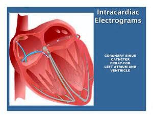 Electrophysiology Study Catheter Ablation
