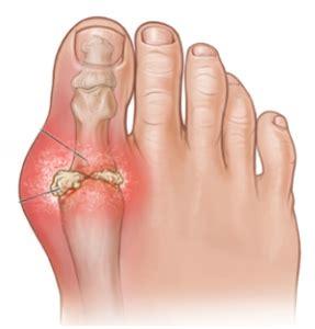 gout treatment  ways  prevent  future gout flare