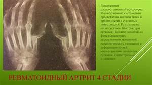Ревматоидный артрит кистей рук лечение народными средствами картошкой