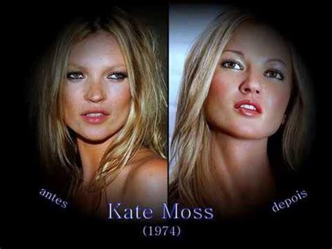 celebridades antes e depois da pl 225 stica youtube